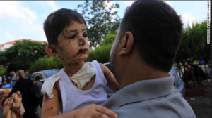Gazan boy hit by strikes going to the hospital on July 20